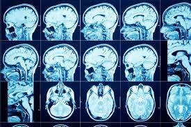 Dc.5F-NeurologicalEffectsVaccine.20210720